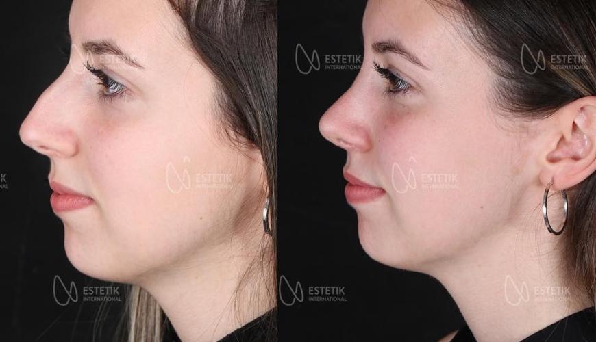 nose job italy